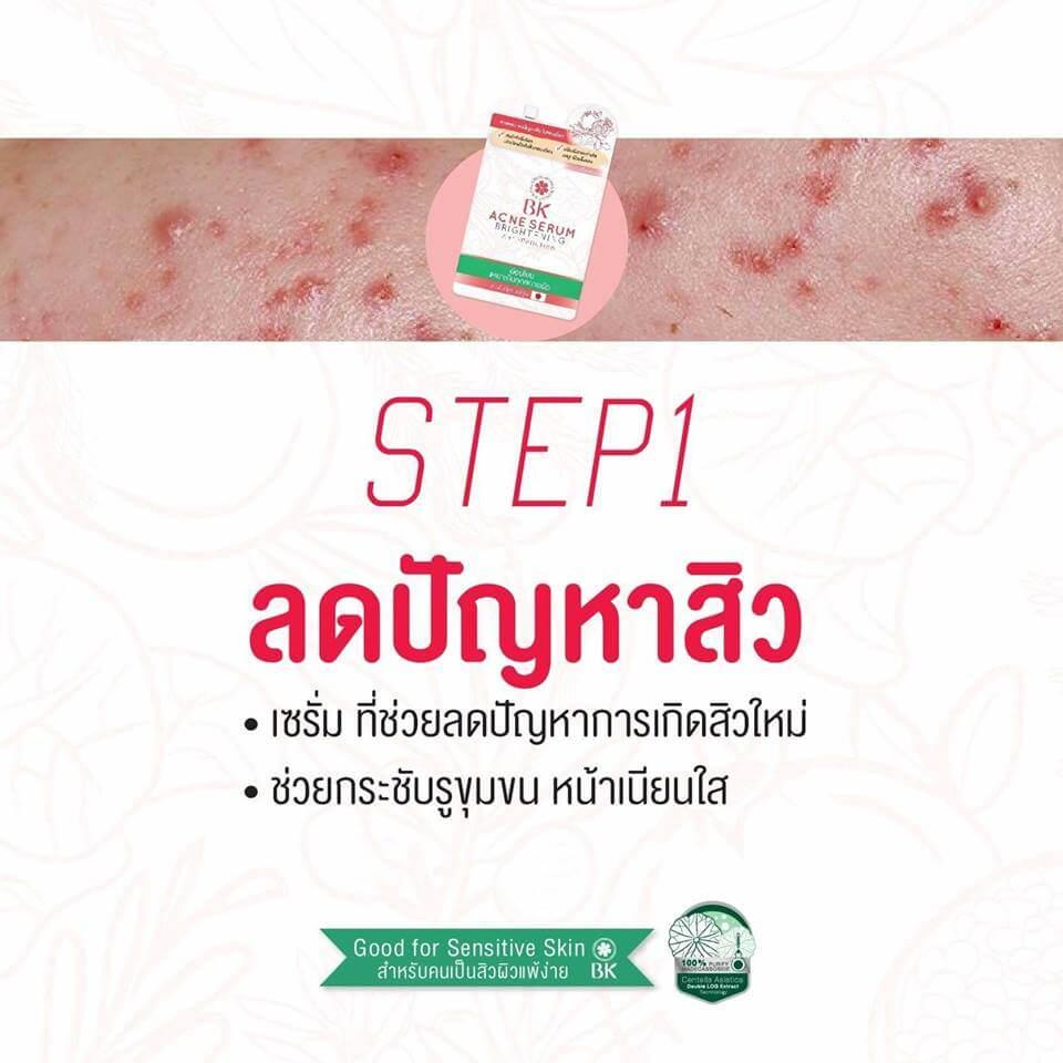 BK MASK Acne Serum Brightening Anti-Pollution 30g ,เซรั่มบำรุงผิว,เซรั่มป้องกันสิว,BK MASK,บีเค มาสก์,Acne Serum Brightening Anti-Pollution